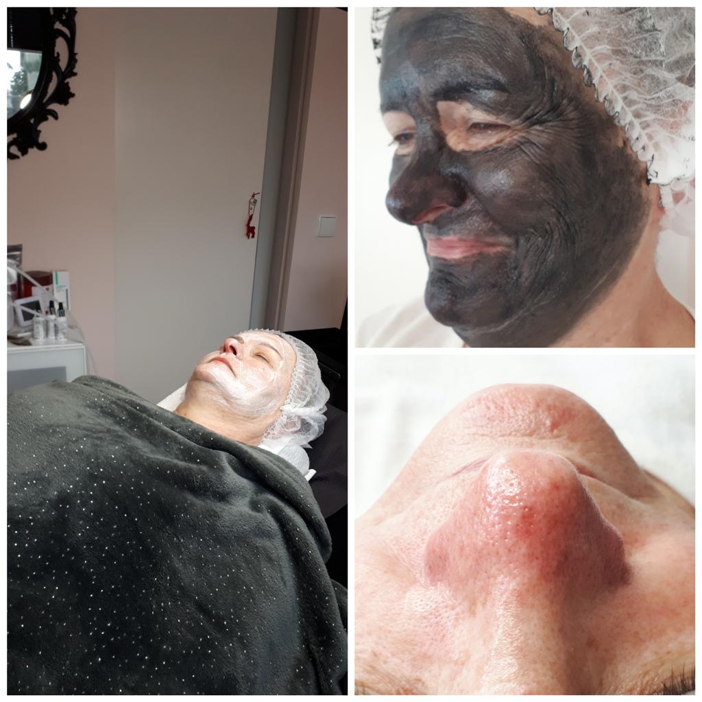 Zabieg-oczyszczania-manualnego-z-dodatkowa-pielegnacja-uroda-plus-joanna-maskulak-salon-kosmetyczny-pabianice-tuszyn-ksawerow-rzgow