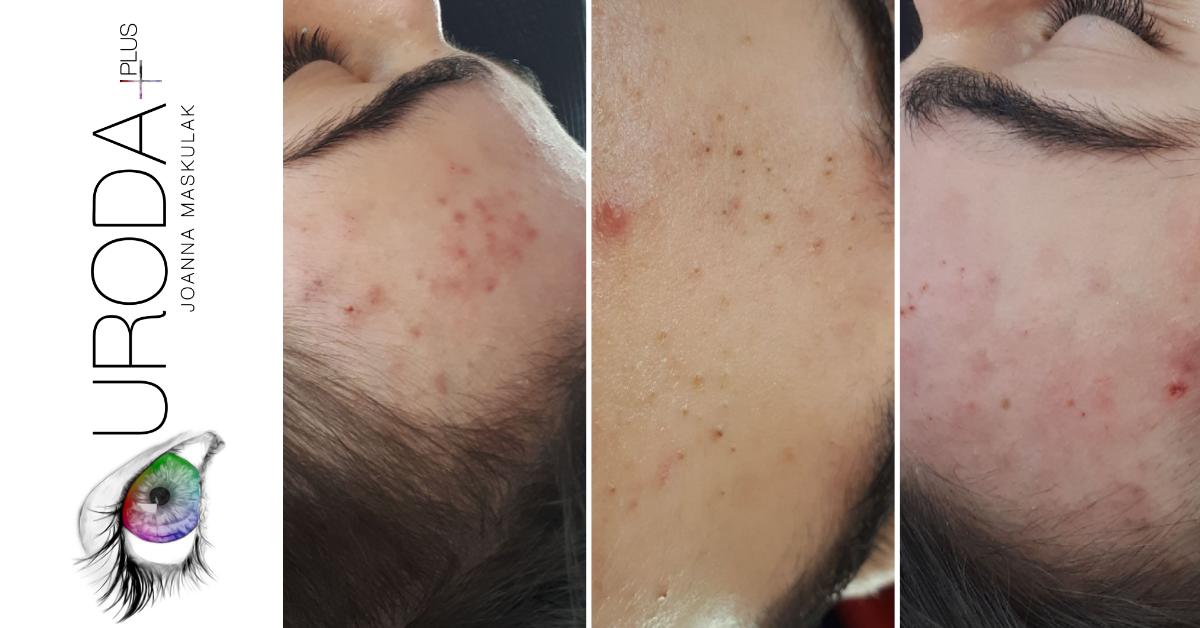 higiena-twarzy-pryszcze-uroda-plus-joanna-maskulak-salon-kosmetyczny-pabianice-ksawerow